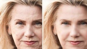 Woman get facelift before and after picture