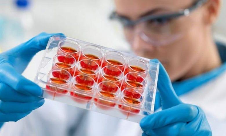 manipulation-scientifique Platelet-Rich Plasma (PRP)