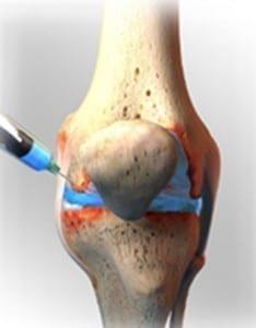 medecine-sportive-knee-injection-234x300 Sports Regenerative Medicine