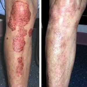 patient received stem cells for psoriasis