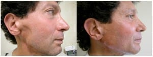 stem cell injection for aesthetic beauty