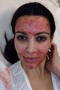 Kim Kardashian gets the Vampire FaceLift