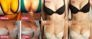 Before and After a Vampire Breast Lift