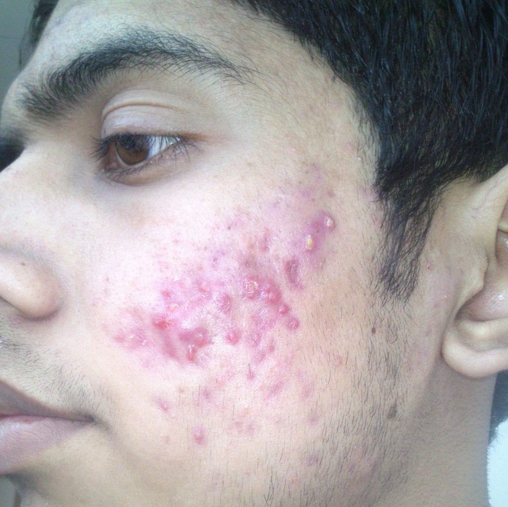 I_have_to_much_pimple_what_should_I_do_2013-12-20_12-57-1024x1022 Cosmetic Treatments