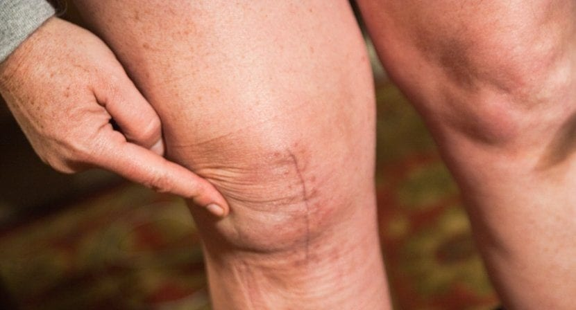 Caroline-Knee-Scar-March-18-2011-total-knee-replacement-e1520550687912 Scar Treatments