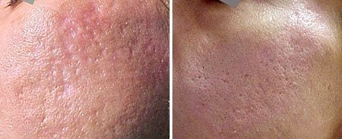 Before and After Acne Scar Laser Treatment