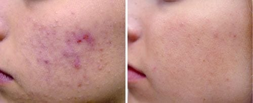 Before and After Fotona Laser treatment for Acne