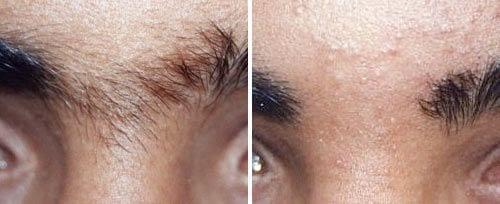eyebrow hair reduction