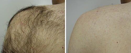 shoulder_hair_reduction_sult_rn Laser Hair Removal