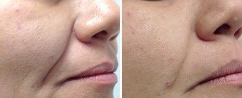 fotona4d Non-Invasive Laser Facelifting