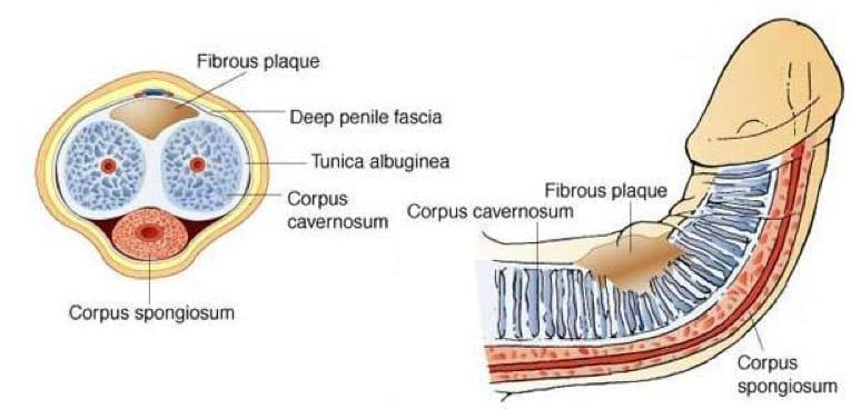 Peryronies-disease P-Shot: Erectile Dysfunction Treatment