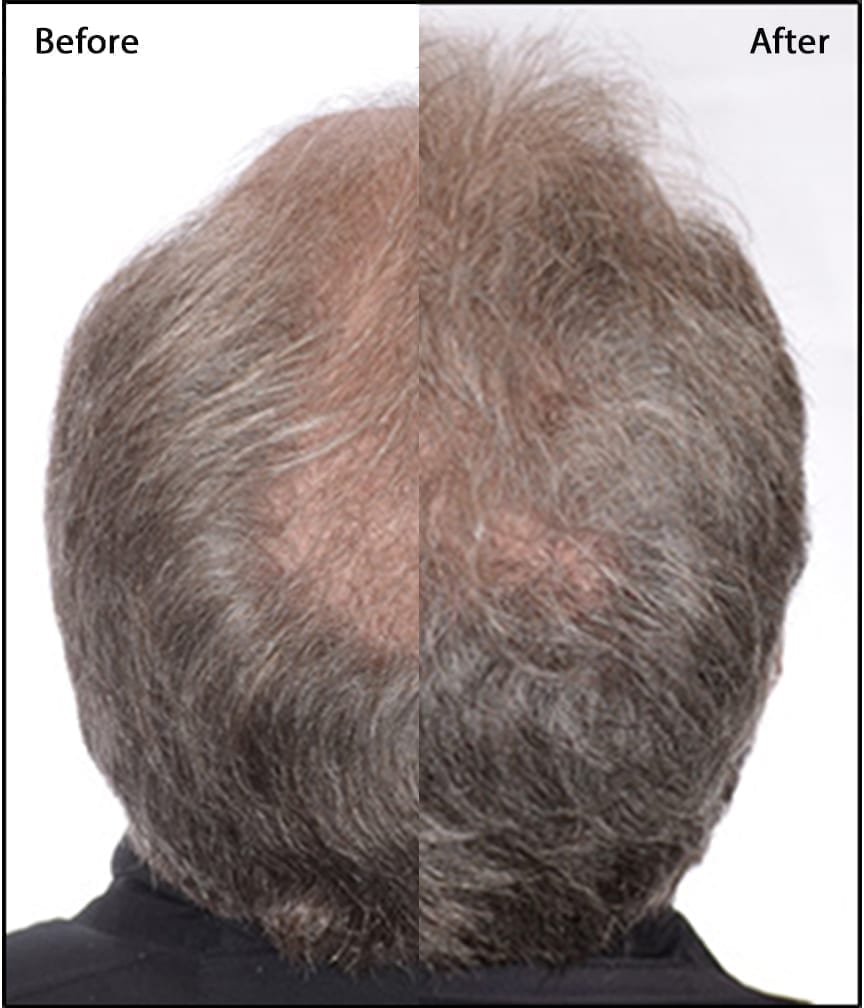 before-and-after-PRP-Hair-reGrowth Cosmetic Treatments