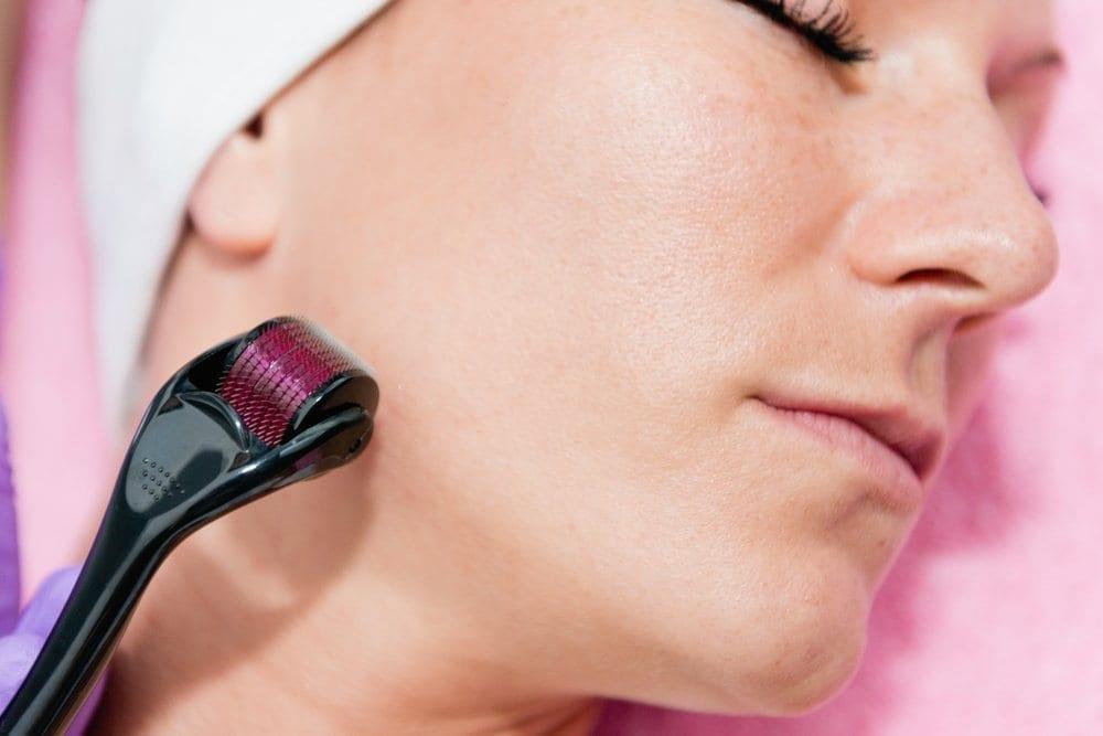 derma-roller-treatment Micro-auguillage (Microneedling) faciale