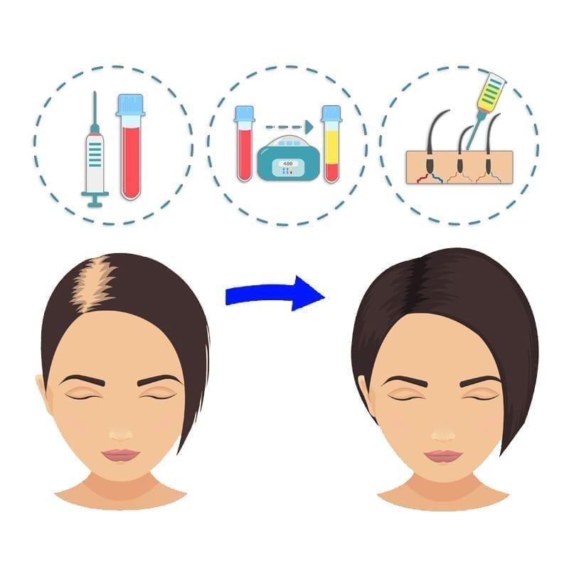 woman-PRP-Hair-reGrowth PRP hair regrowth