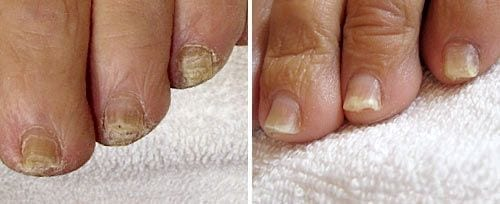 onychomycosis-before-after ClearSteps: Toenail Fungus Treatment